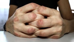 Zmiany skórne na dłoniach
