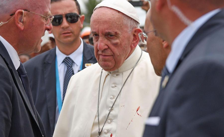 Papież doznał obrażeń twarzy