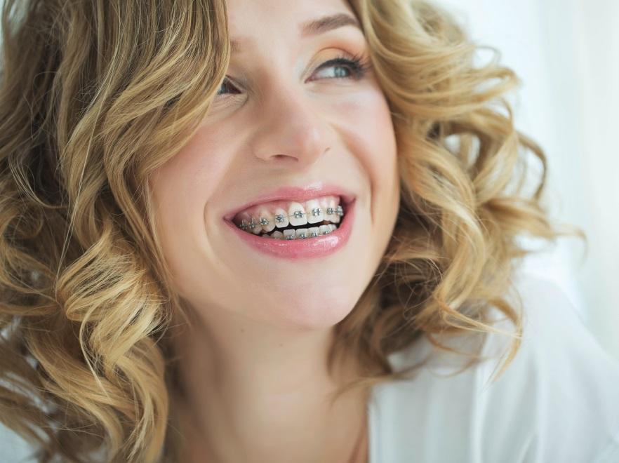 Kobieta w aparacie ortodontycznym