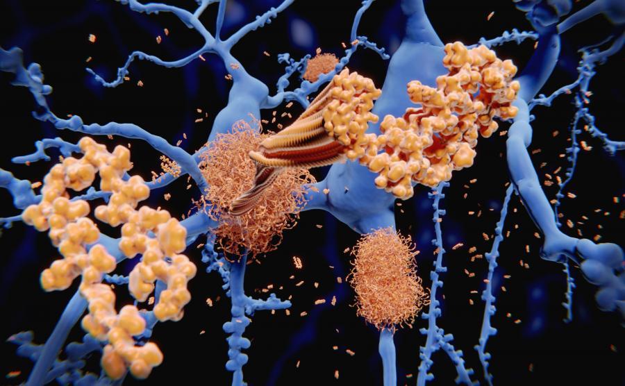 Uszkodzenia komórek nerwowych w mózgu