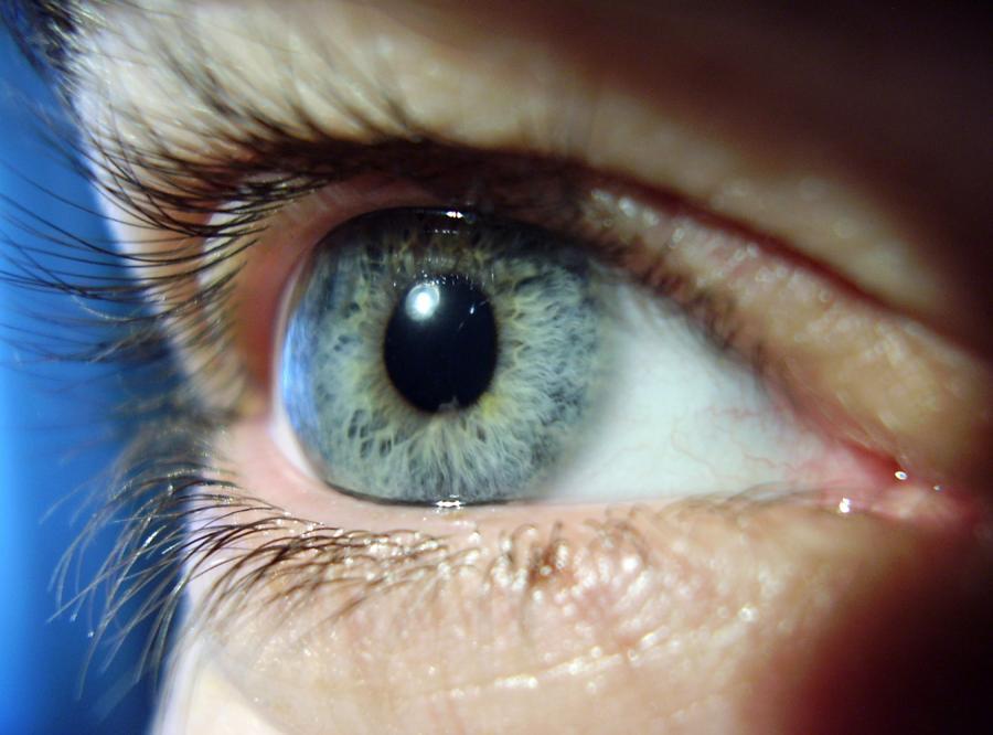 Co zrobić, gdy wiosną łzawią oczy?
