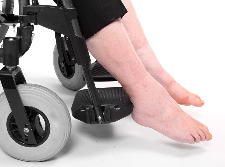 Niepełnosprawni są skazani na oczekiwanie na sprzęt