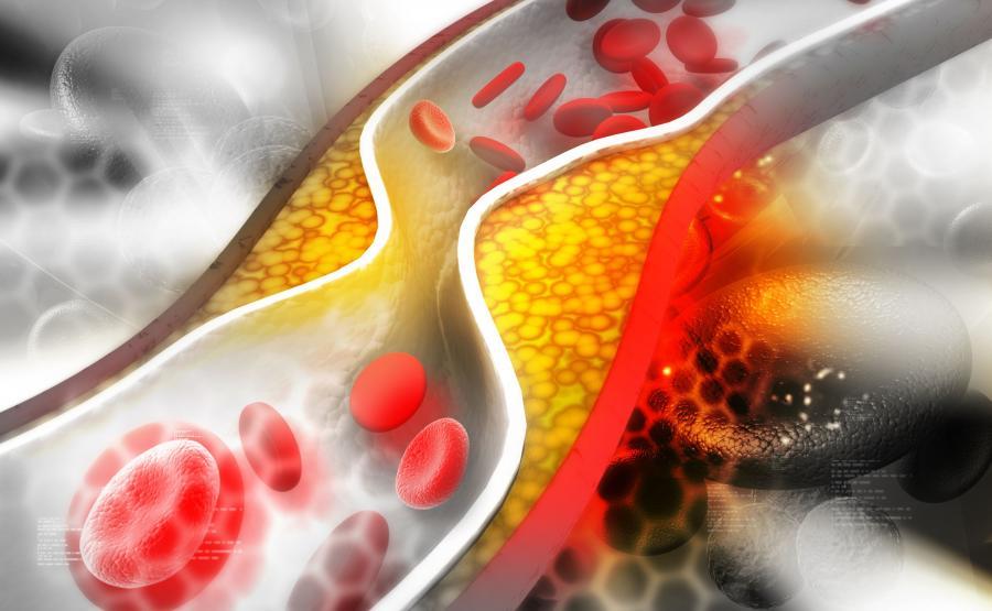 6. Cholesterol